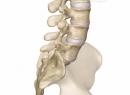 Поясничные позвонки: лечение и реабилитация. Позвонки поясничного отдела: описание, строение. и лечение