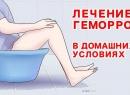 Симптомы и лечение геморроя народными средствами