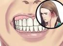 Сводит челюсть: причины, способы и особенности лечения