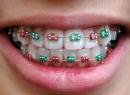 Какие бывают брекеты на зубы: виды, особенности и отзывы