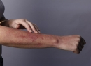 При аллергии сыпь: фото, лечение, профилактика