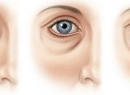 Носослезная борозда: фото до и после коррекции
