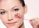 Народные методы лечения купероза