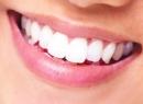 Имплант или коронка - что лучше на зуб?