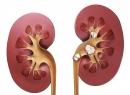Камни в почках - симптомы проявления мочекаменной болезни, признаки камней в почках, виды и особенности кам