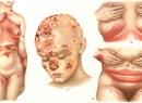 Народные методы лечения фавуса