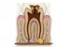 Удаление кисты без удаления зуба: подробности процедуры