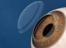 Пересадка роговицы глаз: описание, показания, стоимость, отзывы. Микрохирургия глаза