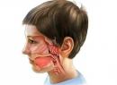 Хронический аденоидит: симптомы, диагностика, лечение, профилактика