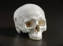 Возрастные особенности черепа. Череп младенца. Швы черепа: анатомия
