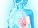 Нелактационный гнойный мастит: симптомы и лечение