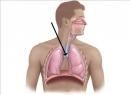 Как выглядит рак трахеи? Симптомы, лечение рака трахеи