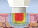 Микроволновая терапия: показания и противопоказания, отзывы