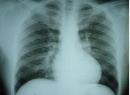 Гемосидероз легких: проявление и лечение