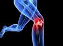 Лечебная физкультура при артрозе коленного сустава: упражнения, правила их выполнения