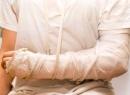 Первая помощь при переломах конечностей: пошаговое описание, рекомендации и лечение