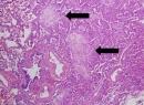 Криптогенный сепсис: симптомы и лечение