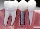Имплантация зубов вернет былую уверенность
