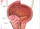 Народные методы лечения рака предстательной железы