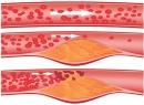 Народные методы лечения атеросклероза сосудов нижних конечностей