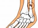 Первая медицинская помощь (ПМП) при переломах: наложение шины, кровоостанавливающего жгута, транспортировка пострадавшего