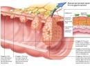 Рак прямой кишки - общая информация