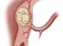 Эмболизация маточных артерий при миоме матки: лечение и последствия