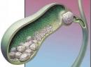 Камни в желчных протоках: причины, симптомы и лечение