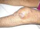 Что такое костный туберкулез? Как передается? Причины и лечение
