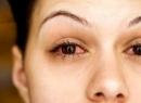 Епісклерит глаза: признаки, причины, лечение