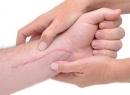 Пластырь силиконовый, удаляет рубцы и шрамы: рекомендации по использованию