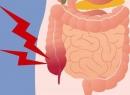 Аппендэктомия - это что такое?