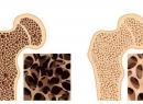 Заболевания костей: виды, симптомы и лечение