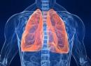Левосторонняя нижнедолева пневмония: симптомы и лечение