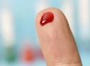 Длительность кровотечения: норма и время свертывания