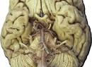 Черепные нервы 12 пар: анатомия, таблица, функции