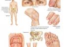 Причины развития и лечение реактивного артрита