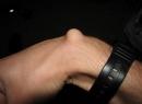 Шишка на вене на руке: причины появления