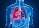 Злокачественные опухоли легких