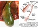 Дискинезия желчновыводящих путей