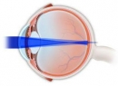 Сложный миопический астигматизм обоих глаз у детей: лечение