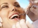 Сепарация зубов: до и после