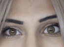 Индивидуальные глазные протезы: обзор, описание, виды и отзывы