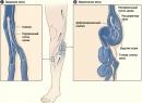 Народные методы лечения варикоза при беременности