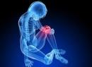 Пателлофеморальный артроз коленного сустава: особенности болезни и лечение