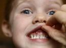 Гнойники на деснах у ребенка: причины и лечение