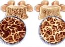 Лечение остеопороза у пожилых женщин: препараты, гимнастика