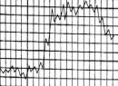 Типы температурных кривых при различных заболеваниях