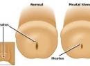 Стеноз наружного отверстия уретры (меатостеноз)