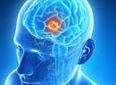 Укрепление и очищение сосудов головного мозга народными средствами